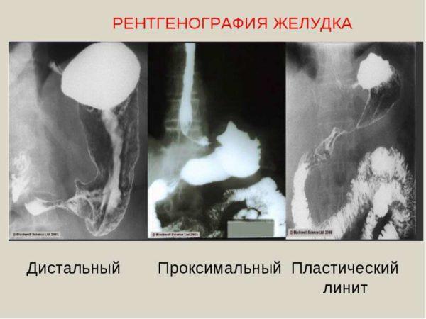 Подготовка к рентгену желудка с барием