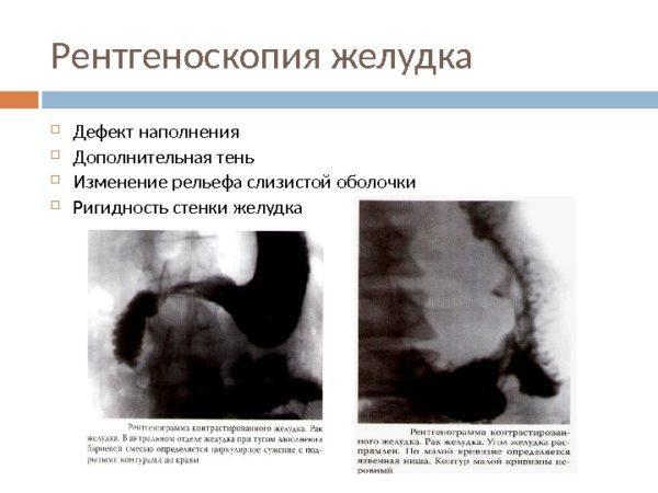 Рентгенограмма контрастированного желудка