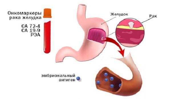 """СА 72- 4 чаще всего встречается в комбинации с другими """"метками"""" при раке желудка"""