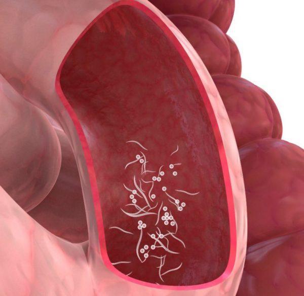 Острицы в кишечнике
