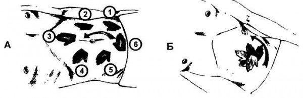 Схема ориентировочной поверхностной пальпации живота