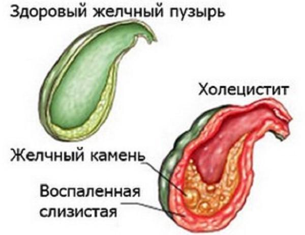 Схематическое изображение процесса образования камней и воспаления слизистой