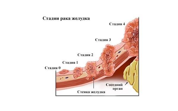 Схематическое определение стадий рака желудка