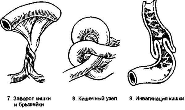Схематичное изображение заворота кишечника
