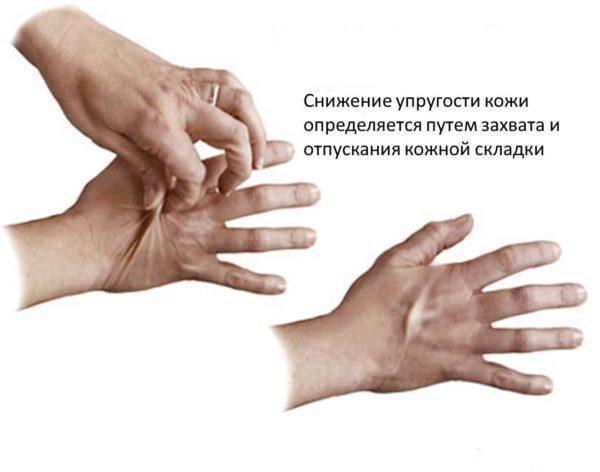 Симптом дегидратации