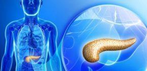 Симптомы болезни поджелудочной железы у мужчин