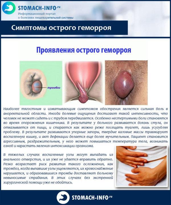 Симптомы острого геморроя
