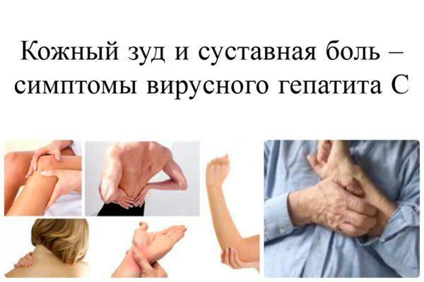 Симптомы вирусного гепатита С