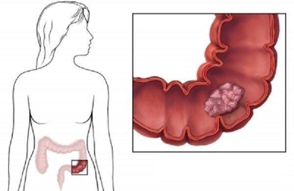 Симптомы возникновения полипоза