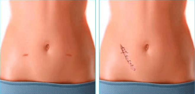 Слева – шрам после лапароскопии, справа – после открытой операции по удалению аппендикса