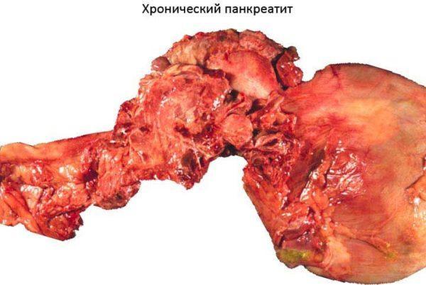 Состояние поджелудочной железы при хроническом панкреатите