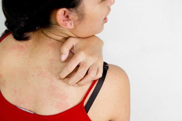 Сыпь обычно сопровождается зудом
