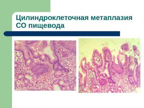 Цилиндроклеточная метаплазия пищевода