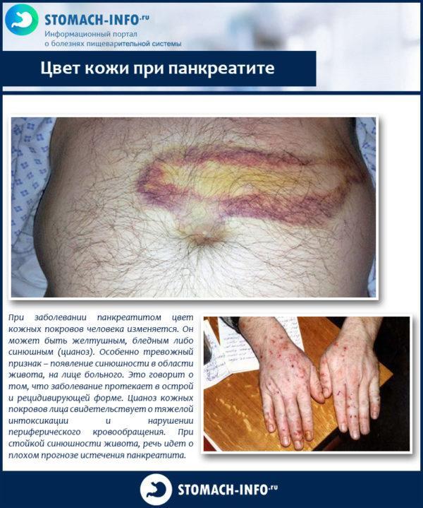 Цвет кожи при панкреатите