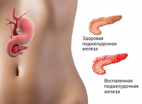 Так выглядит воспаленная поджелудочная железа