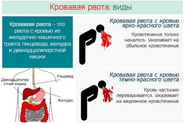Виды кровавой рвоты