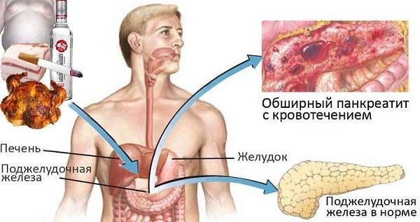 Вторичный панкреатит образуется не ввиду нездорового образа жизни, однако, все равно сохраняет с ним косвенную связь