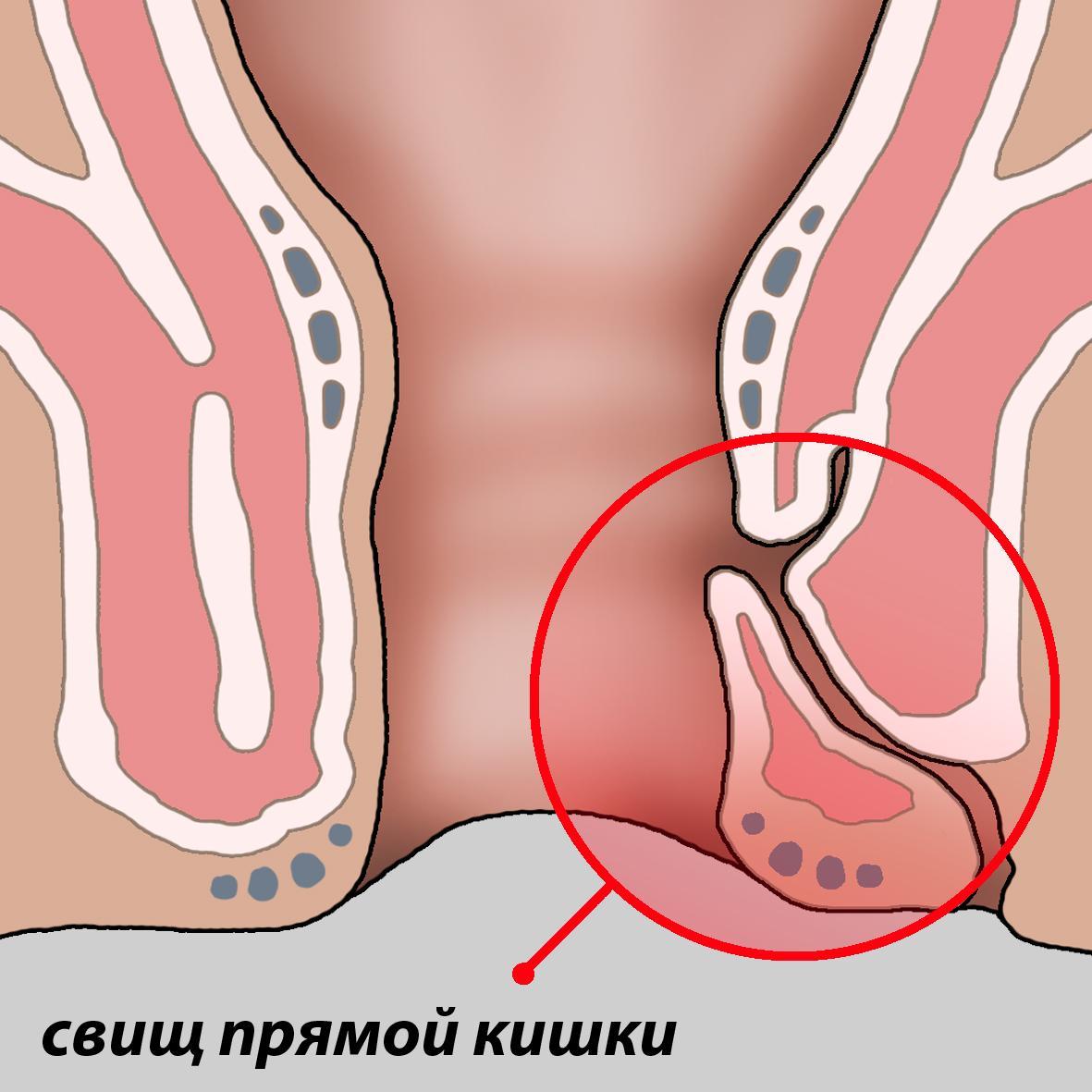 Лечение анального свища народными средствами