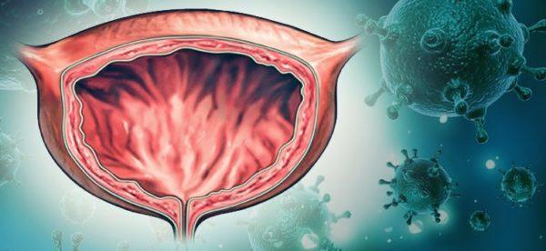Застой урины требует немедленного хирургического вмешательства
