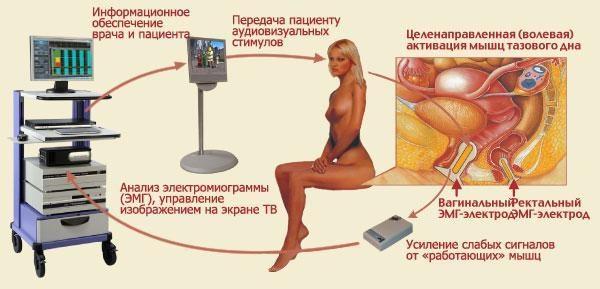 Комплекс «Уропроктокор» предназначен для лечения широкого спектра урологических, гинекологических и проктологических заболеваний. С помощью комплекса «Уропроктокор» производится коррекция ряда сексуальных расстройств у мужчин и женщин