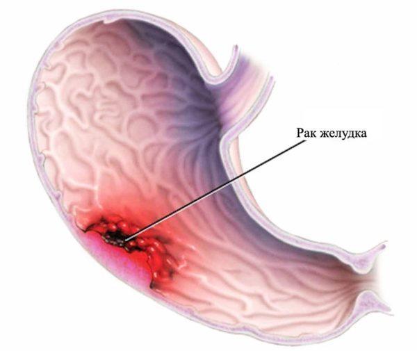 Первые признаки рака желудка на ранней стадии