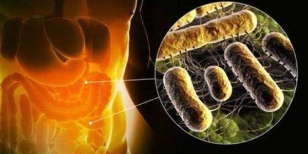 Дисбиоз кишечника