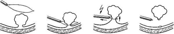 Этапы эндоскопической полипэктомии диатермической петлей