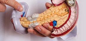 Фиброз поджелудочной железы: что это такое?