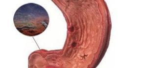 Гастродуоденит: симптомы и лечение у детей
