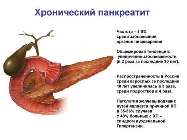 Хронический панкреатит - одна из самых распространённых причин фиброза