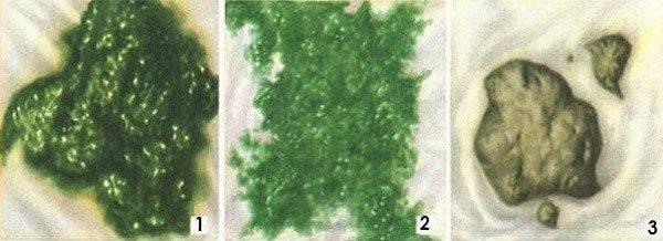 Как может выглядеть зеленый кал у детей