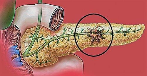 Некротизирование тканей поджелудочной железы