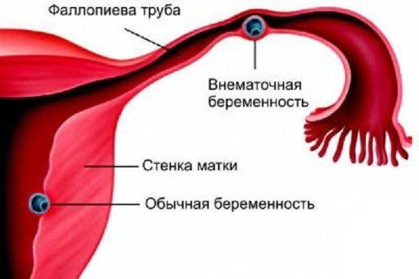 Обычная локализация внематочной беременности