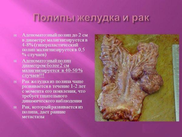 Полипы желудка и рак