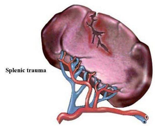Разрыв селезенки, изображенный на рисунке