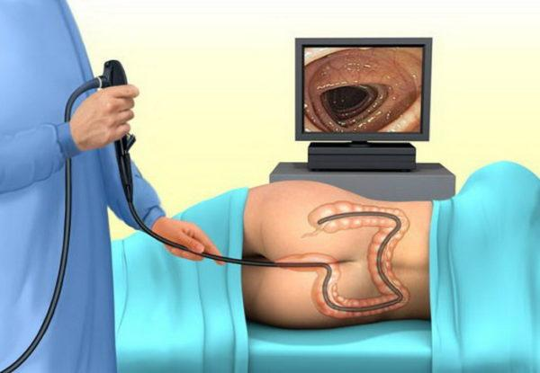 Схема проведения колоноскопии