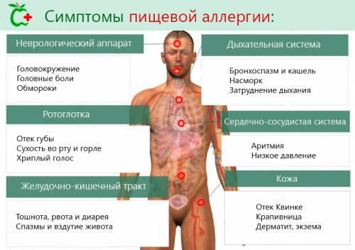 Симптомы при пищевой аллергии