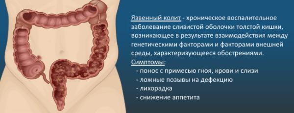 Симптомы язвенного колита