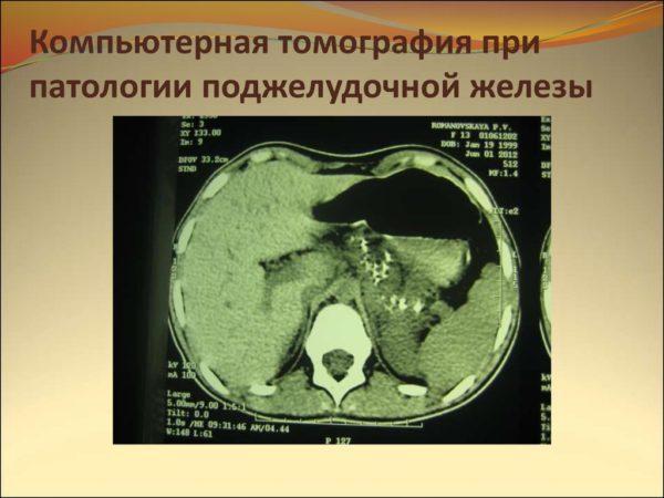 Снимок поперечного среза тела на уровне поджелудочной железы, сделанный методом КТ