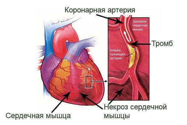 Ишемическое поражение сердечной мышцы