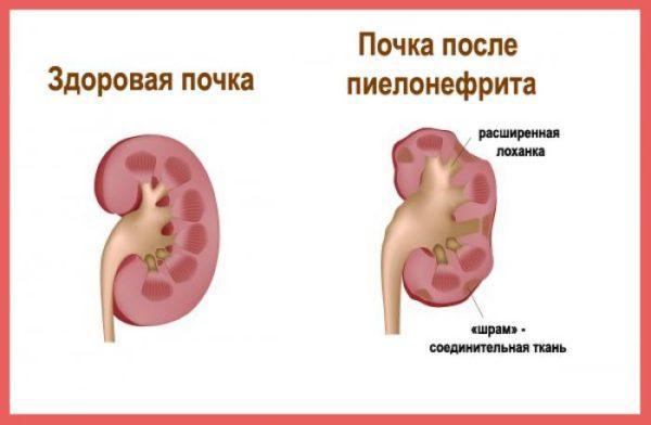 Как меняется почка во время болезни