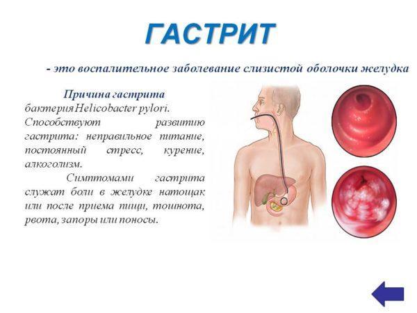 Боль в желудке, отдающая в бок, может быть признаком гастрита