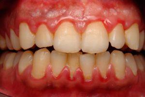 Стоматологические проблемы: абсцессы, гингивиты, реакция организма на неправильно подобранные пломбировочные материалы