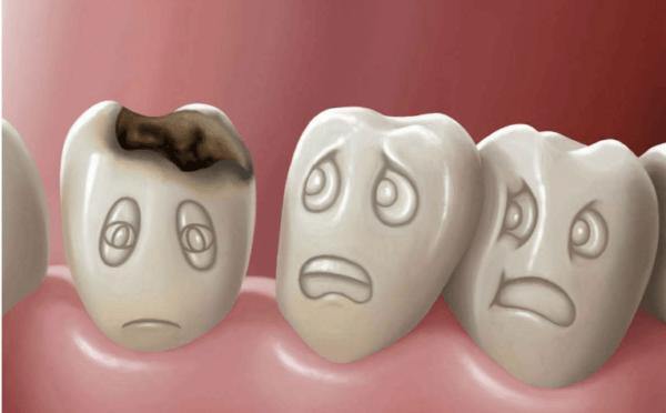 Налет может образовываться из-за распространения бактерий во рту вследствие кариеса