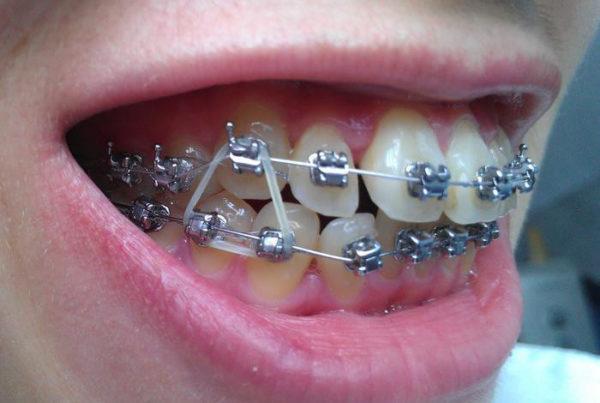 Металлические элементы во рту, включая брекеты, не являются противопоказанием к МРТ, если проводится диагностика брюшной полости