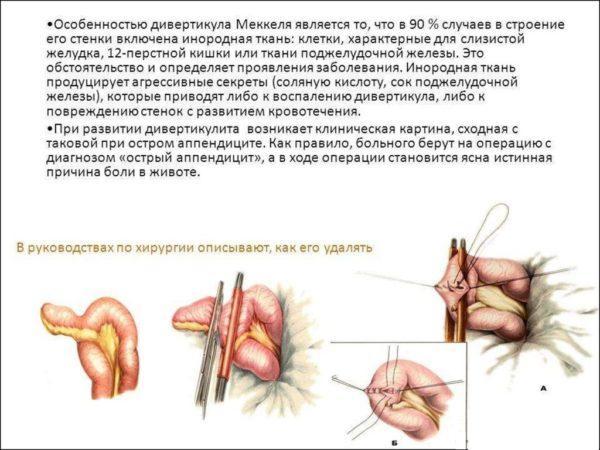 Дивертикул Меккеля (дивертикул подвздошной кишки) является врождённой аномалией тонкой кишки, связанной с нарушением обратного развития проксимального отдела желточного протока (протока между пупком и кишечником)