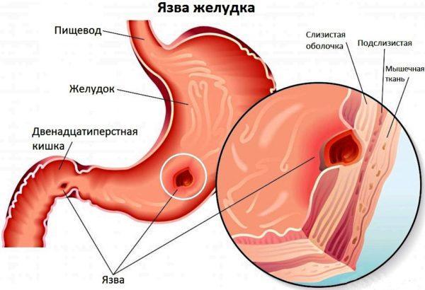 Боль в боку и рвота могут быть признаками язвы