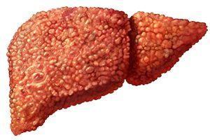 Патологии и болезни печени (цирроз, гепатиты, желтуха, стеатоз)