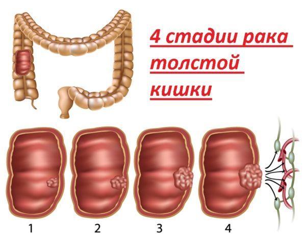 Как выглядит рак толстой кишки