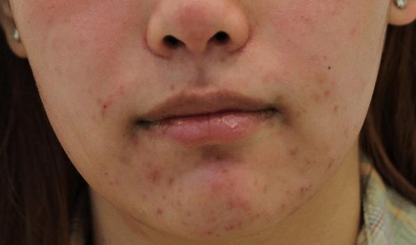 Аллергические прыщи на подбородке